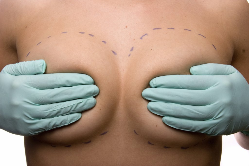 Arizona Breast Augmentation Incisions and Breast Implant Placement
