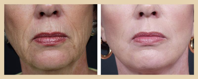 Woman before and after dermabrasion by Dr. Corey in Scottsdale
