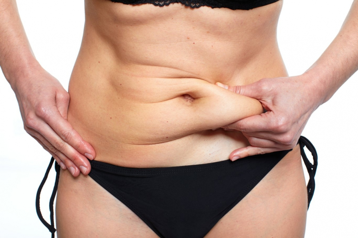 Arizona Tummy Tuck Candidate