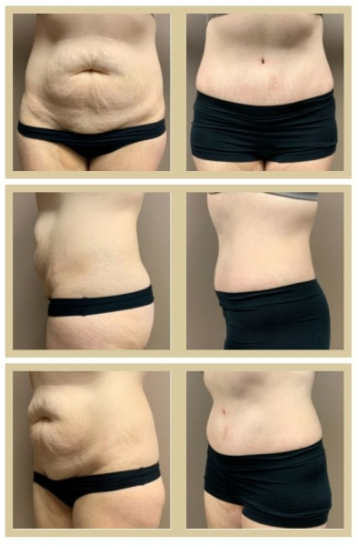 Skin-only tummy tuck before and after Scottsdale, AZ
