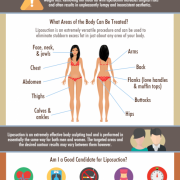 What Areas of the Body can be Treated with Liposuction? Scottsdale Lipo Questions.