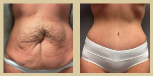 mommy makeover results from Phoenix surgeon Dr. Corey