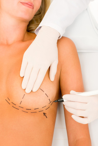 Breast lift incisions Scottsdale AZ