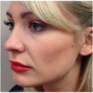juvederm-for-cheeks-after-john-corey-aesthetic-plastic-surgery
