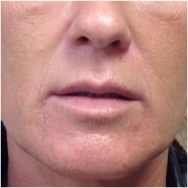 juvederm-and-volbella-for-lips-before-john-corey-aesthetic-plastic-surgery
