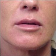 liquid-facelift-after-john-corey-aesthetic-plastic-surgery
