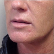 liquid-facelift-before-john-corey-aesthetic-plastic-surgery