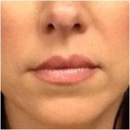 before-lips-fillers-john-corey-aesthetic-plastic-surgery