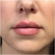 after-lips-fillers-john-corey-aesthetic-plastic-surgery