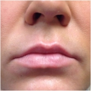 cheeks-before-image-john-corey-aesthetic-plastic-surgery