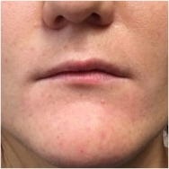 before-juvederm-lips-john-corey-aesthetic-plastic-surgery