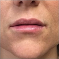 juvederm-lips-after-john-corey-aesthetic-plastic-surgery
