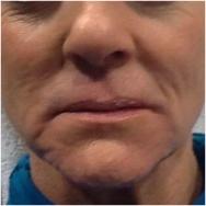 liquid-face-before-john-corey-aesthetic-plastic-surgery