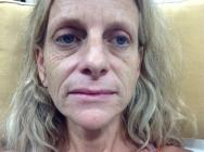 before-liquid-facelift-john-corey-aesthetic-plastic-surgery