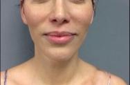 cheeks-after-image-john-corey-aesthetic-plastic-surgery
