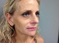 after-facelift-john-corey-aesthetic-plastic-surgery