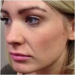 juvederm-for-cheeks-before-john-corey-aesthetic-plastic-surgery