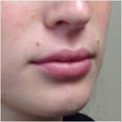 juvederm-for-lips-before-image-john-corey-aesthetic-plastic-surgery