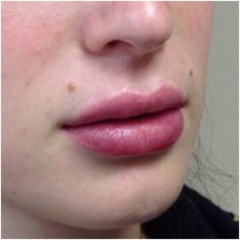 juvederm-for-lips-after-image-john-corey-aesthetic-plastic-surgery