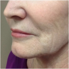 volbella-lips-after-john-corey-aesthetic-plastic-surgery