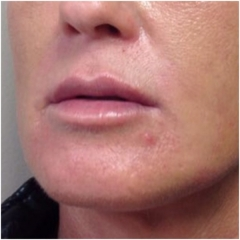 liquid-facelift-after-john-corey-aesthetic-plastic-surgery