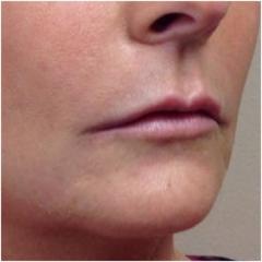 naso-lips-side-after-john-corey-aesthetic-plastic-surgery