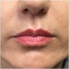 lips-before-image-john-corey-aesthetic-plastic-surgery