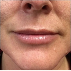 juvederm-for-lips-after-john-corey-aesthetic-plastic-surgery