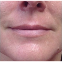 juvederm-for-lips-before-john-corey-aesthetic-plastic-surgery