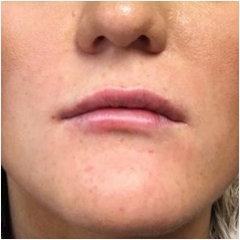 after-juvederm-lips-john-corey-aesthetic-plastic-surgery