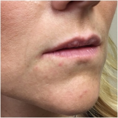 juvederm-lips-before-john-corey-aesthetic-plastic-surgery