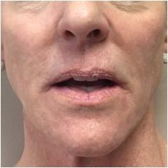 liquid-face-after-john-corey-aesthetic-plastic-surgery
