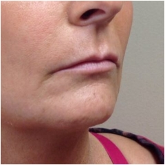 naso-lips-side-before-john-corey-aesthetic-plastic-surgery