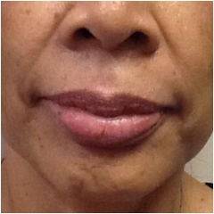 volbella-for-lips-before-image-john-corey-aesthetic-plastic-surgery