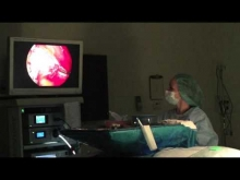 Embedded thumbnail for Breast Augmentation Surgery - Dr. John J. Corey